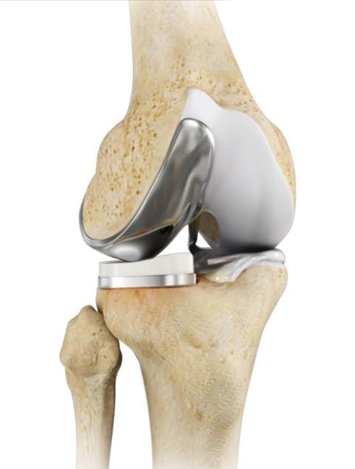 Unicomp-partial-knee-replacement_BOSM
